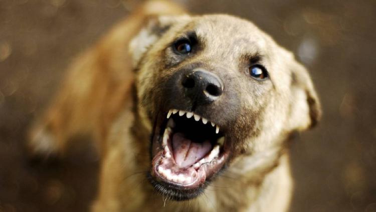 «Собака бывает кусачей…». Советы для тех, кто хочет знать, что делать, если животное напало